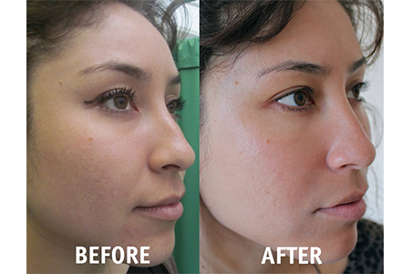 Vampire Facelift Before And After 1 Buena Vista Aesthetics Revive Your Beauty