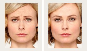 Botox Before and After (2)