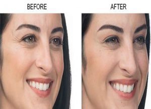 Botox Before and After (4)
