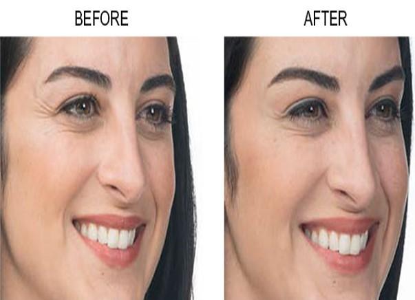 Botox Cosmetic - Buena Vista Aesthetics | Revive Your Beauty