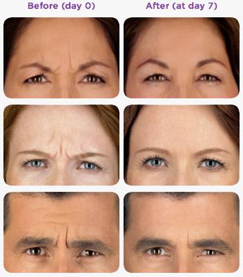 Botox Cosmetic | Buena Vista Aesthetics