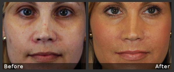 Laser Facial Rejuvenation | Buena Vista Aesthetics