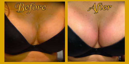 Boob lift before and after photos SHE