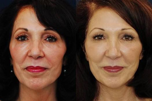 Vampire Facial Amp Vampire Facial Rejuvenation Buena Vista