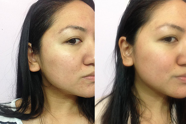 Facial before and after photos can