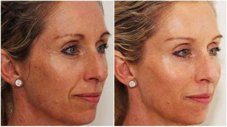 Refill with Dermal Fillers