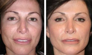 laser-facial-photo-1