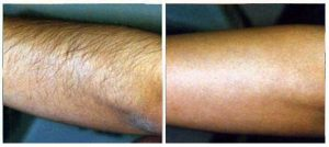 laser-hair-removal-photo-3