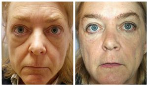 vampire-facelift-photo
