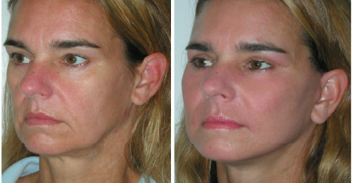 Nasolabial Folds and Marionette Lines